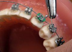 orthodontiste un métier qui paye